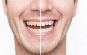 tanden-wit-geel